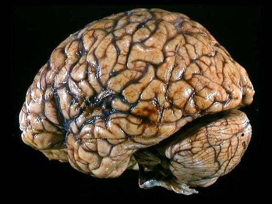 Beyin qırışlarının mənşəyi müəyyənləşdirildi